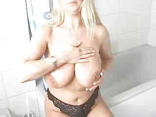 albino woman  lathers lotion all over her